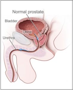 What is Prostate